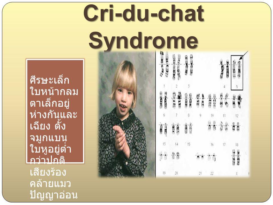 Cri-du-chat Syndrome ศีรษะเล็ก ใบหน้ากลม ตาเล็กอยู่ ห่างกันและ เฉียง ดั้ง จมูกแบน ใบหูอยู่ต่ำ กว่าปกติ เสียงร้อง คล้ายแมว ปัญญาอ่อน
