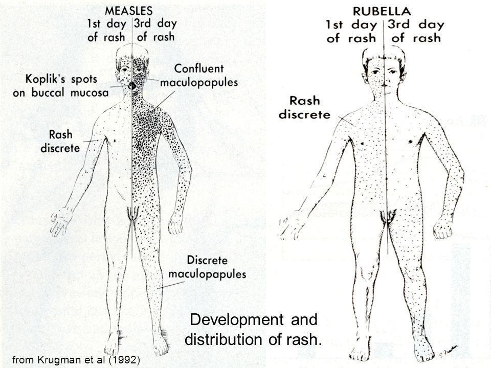 Development and distribution of rash. from Krugman et al (1992)