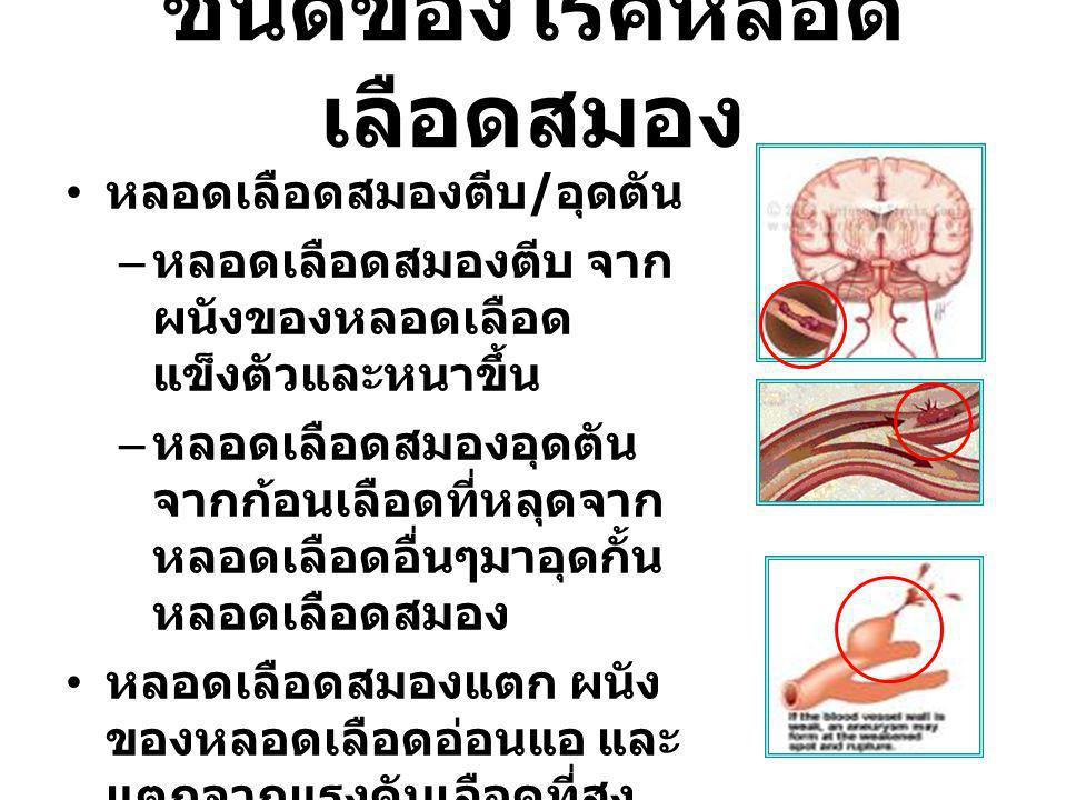 ชนิดของโรคหลอด เลือดสมอง หลอดเลือดสมองตีบ / อุดตัน – หลอดเลือดสมองตีบ จาก ผนังของหลอดเลือด แข็งตัวและหนาขึ้น – หลอดเลือดสมองอุดตัน จากก้อนเลือดที่หลุดจาก หลอดเลือดอื่นๆมาอุดกั้น หลอดเลือดสมอง หลอดเลือดสมองแตก ผนัง ของหลอดเลือดอ่อนแอ และ แตกจากแรงดันเลือดที่สูง มาก หรือมีความผิดปกติของ หลอดเลือด