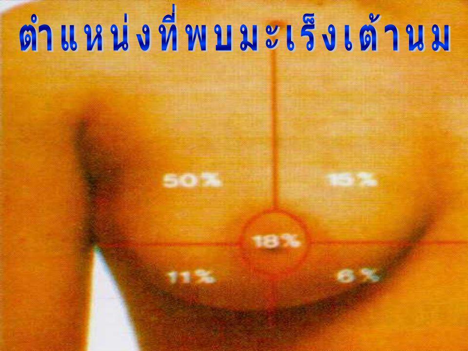 1. ขนาดของก้อนเนื้อที่คลำได้โดยคนที่ไม่เคยทำ BSC ( 3- 5 cms) 2. ขนาดของก้อนเนื้อที่คลำได้โดยคนที่ทำ BSC เป็นครั้งคราว ( 3 cms ) 3. ขนาดของก้อนเนื้อที่