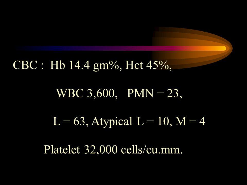 CBC : Hb 14.4 gm%, Hct 45%, WBC 3,600, PMN = 23, L = 63, Atypical L = 10, M = 4 Platelet 32,000 cells/cu.mm.