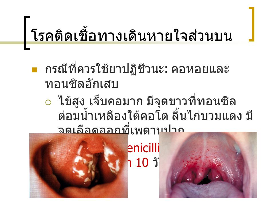 โรคติดเชื้อทางเดินหายใจส่วนบน กรณีที่ควรใช้ยาปฏิชีวนะ : คอหอยและ ทอนซิลอักเสบ  ไข้สูง เจ็บคอมาก มีจุดขาวที่ทอนซิล ต่อมน้ำเหลืองใต้คอโต ลิ้นไก่บวมแดง