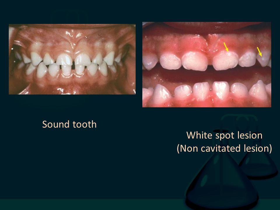 Sound tooth White spot lesion (Non cavitated lesion)