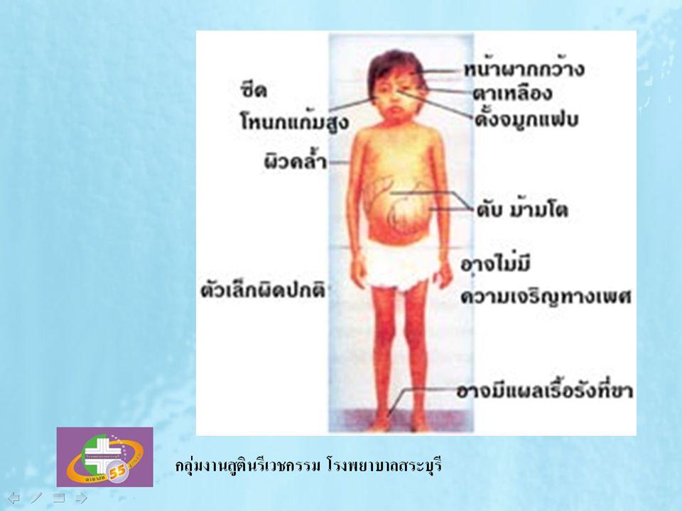 การเกิดโรคเลือดจาง ธาลัสซีเมียชนิดรุนแรง