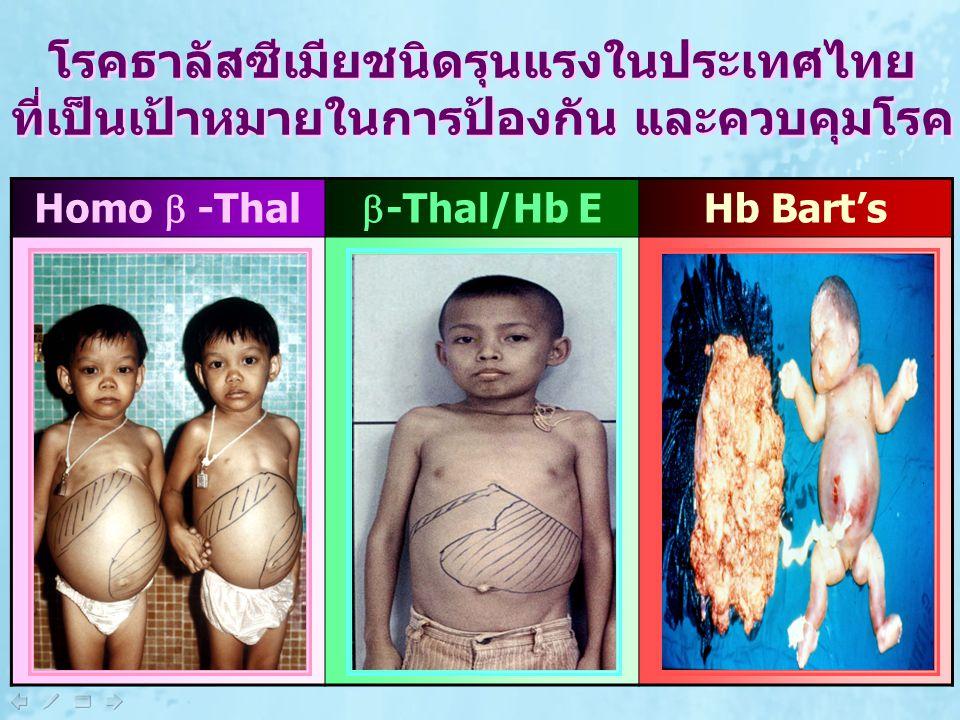 Homo  -Thal  -Thal/Hb E Hb Bart's โรคธาลัสซีเมียชนิดรุนแรงในประเทศไทย ที่เป็นเป้าหมายในการป้องกัน และควบคุมโรค