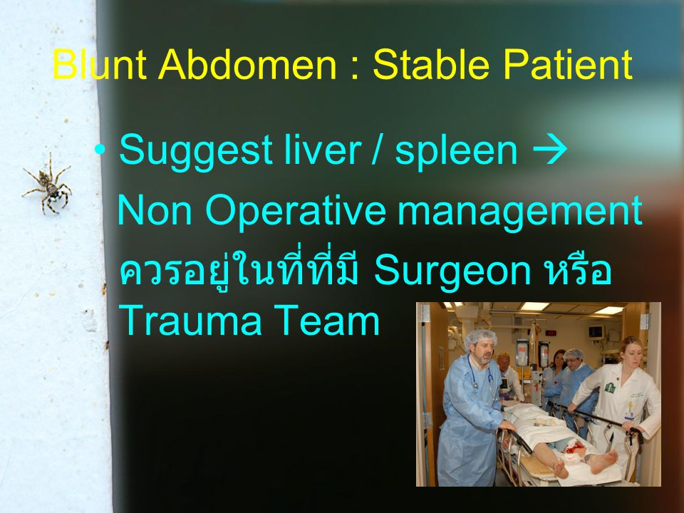 Blunt Abdomen : Stable Patient Suggest liver / spleen  Non Operative management ควรอยู่ในที่ที่มี Surgeon หรือ Trauma Team