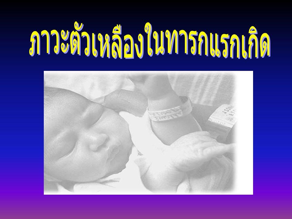 การส่อง ไฟ ใช้รักษาทารกที่มีระดับบิลิรูบิน ปานกลางถึงสูง โดยนำหลอดฟู โอเรสเซนต์ ทำเป็นแผงไฟ มา ส่องเหนือตัวทารก