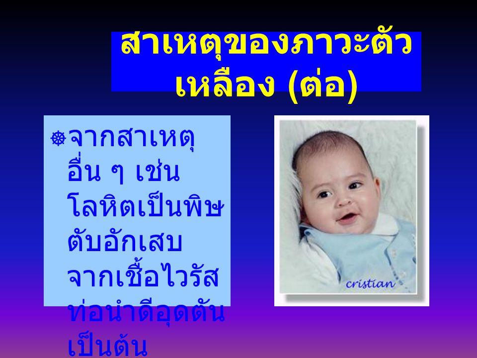 ภาวะตัวเหลือง อันตรายอย่างไร ทารกที่มีระดับบิลิรูบินสูงมาก เหลืองเร็ว เหลืองนาน ถ้าไม่ได้รับ การรักษา อาจเกิดอาการดีซ่านขึ้น สมอง มีอาการซึม ดูดนมไม่ดี แขน ขาอ่อนแรง ชักกระตุก ร้องเสียง แหลม กล้ามเนื้ออ่อนแรง เนื่องจาก สารบิลิรูบินไปจับเซลสมอง