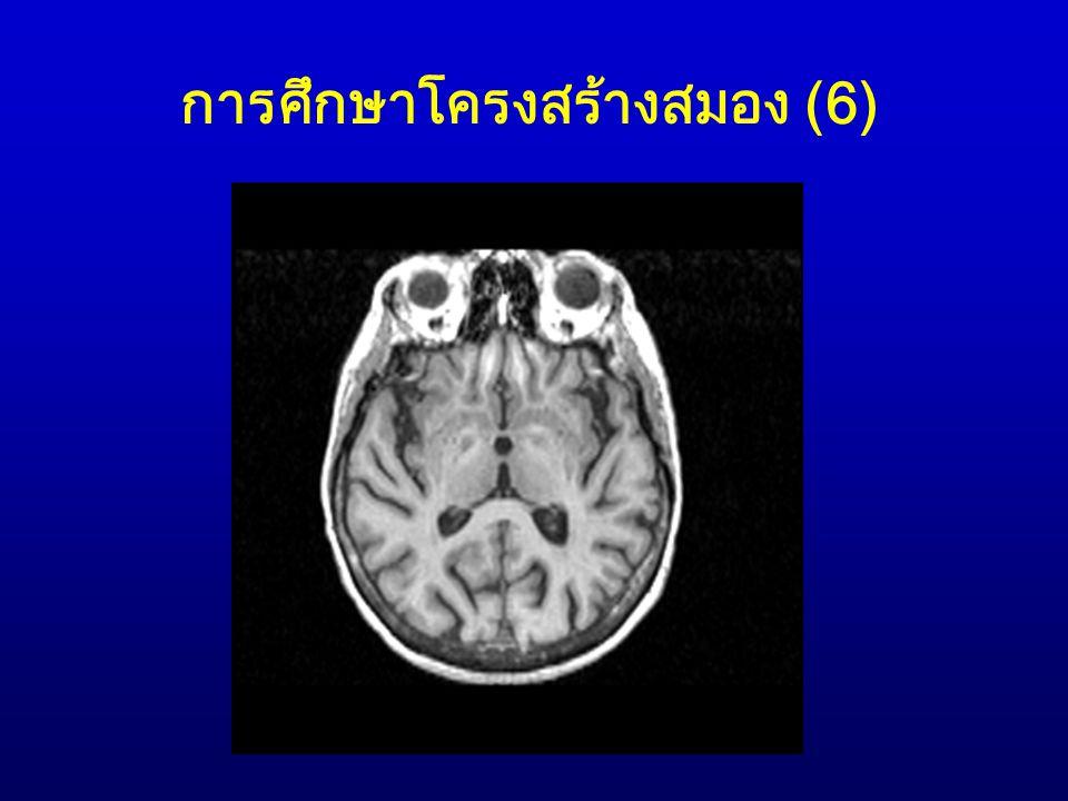 การศึกษาโครงสร้างสมอง (6)