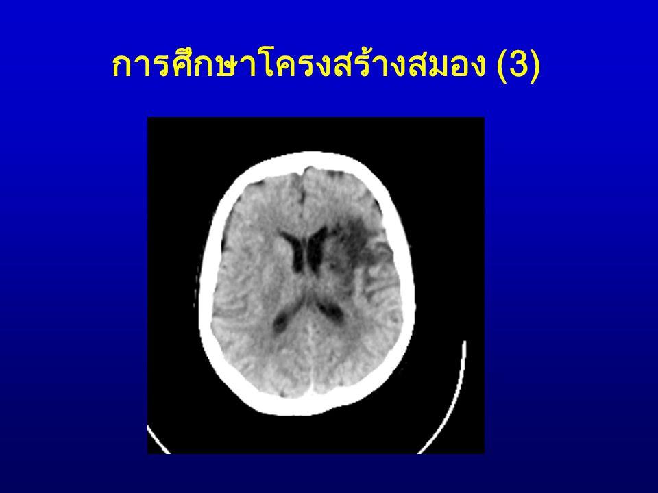 การศึกษาโครงสร้างสมอง (4) 2.Magnetic Resonance Imaging (MRI) Scans MRI scans เริ่มนำมาใช้ในปี ค.ศ.