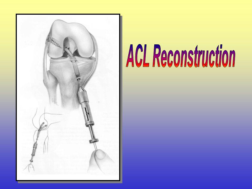 การผ่าตัด ACL Reconstruction การปฏิบัติตัวเพื่อเตรียมรับการผ่าตัด ACL Reconstruction เข้านอนโรงพยาบาล ก่อนผ่าตัด 1 วัน วันผ่าตัด หลังผ่าตัด การออกกำลั
