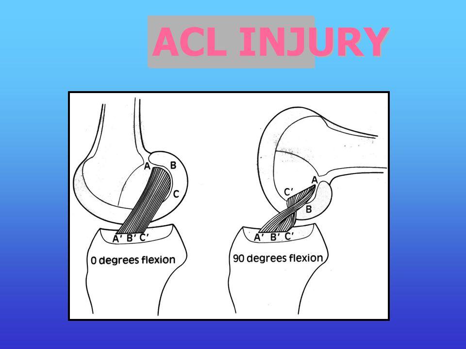 มีบางส่วนเชื่อมติดไปกับ anterior horn ของ lateral meniscus แต่จะไม่มีส่วนใดเกาะอยู่กับ tibia spine เลย ด้านในบริเวณด้านหลังของ lateral femoral condyle
