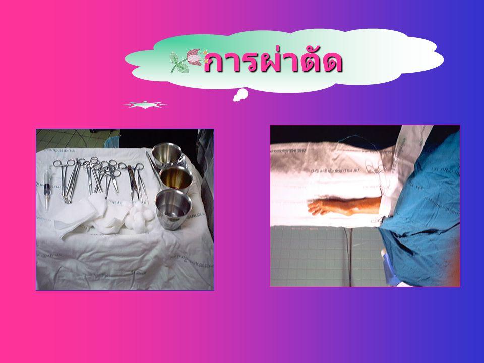 ก้อนถุงน้ำบริเวณมือ เป็นก้อน นูน นิ่ม เชื่อว่าเป็นการเสื่อมของ ปลอกเอ็น หรือถุงหุ้มของข้อต่อ ผนังของก้อนนี้ภายในเป็นเนื้อเยื่อ ไฟบรัส มีน้ำใสปนเมือก ม
