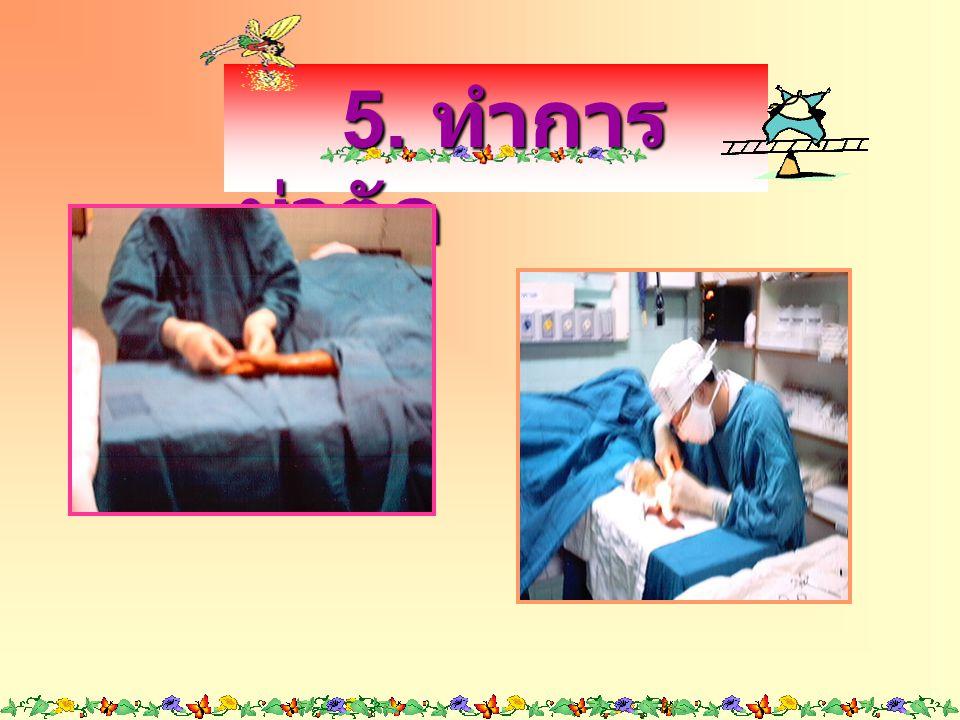 3. ใช้ยางแดง รัดแขนตั้งแต่ ปลายนิ้วมือจนถึง ข้อศอก 3. ใช้ยางแดง รัดแขนตั้งแต่ ปลายนิ้วมือจนถึง ข้อศอก 4. ฉีดยาชา เฉพาะที่บริเวณ ที่จะทำผ่าตัด 4. ฉีดยา