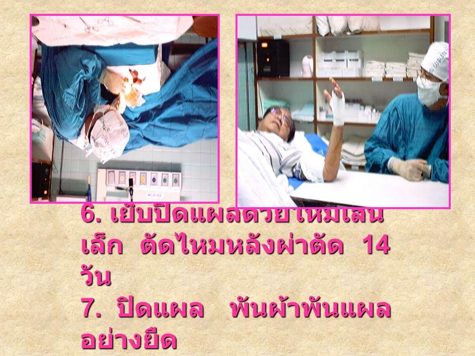 5. ทำการ ผ่าตัด 5. ทำการ ผ่าตัด