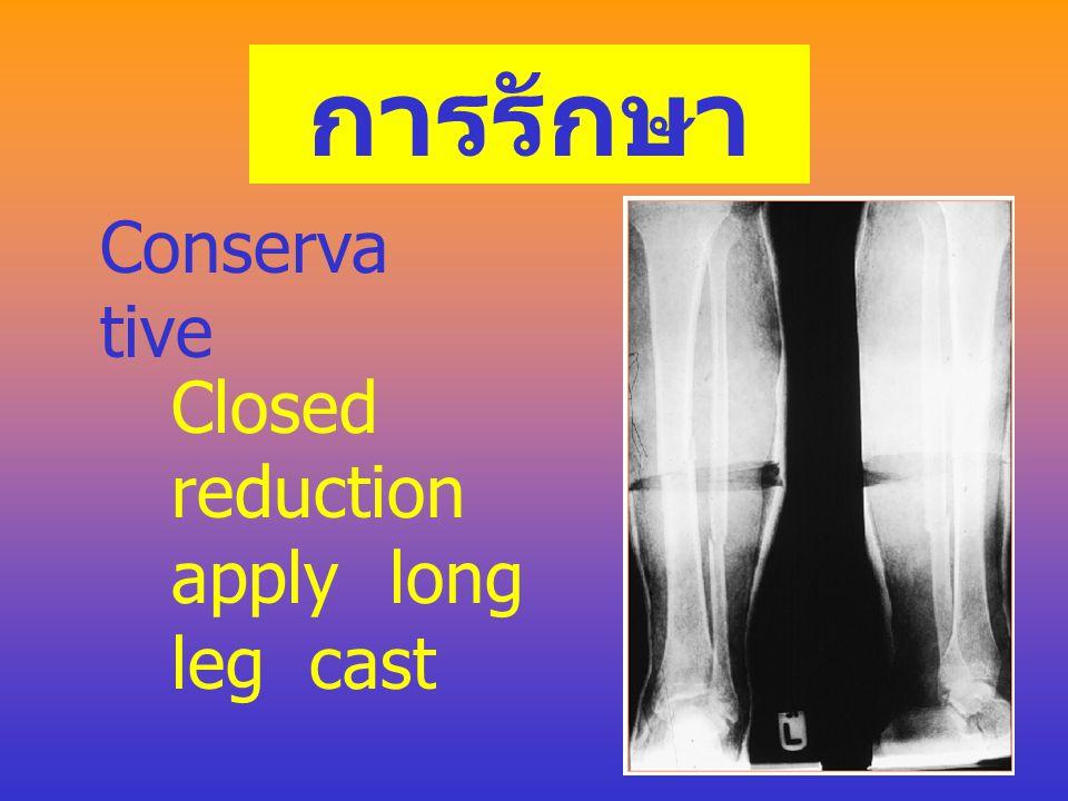 อาการและ อาการแสดง ในผู้ที่รู้สึกตัวดีจะบอกได้ค่อนข้างชัดเจน ขา จะบวมกดเจ็บอาจจะมีเสียงเวลาขยับ (crepitation) ขางอผิดรูป กดเจ็บมากบริเวณตำแหน่งกระดูกห