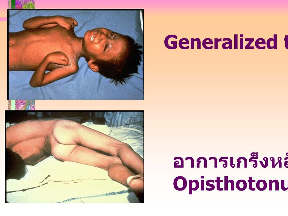 อาการเกร็งหลังแอ่น Opisthotonus Generalized tetanus