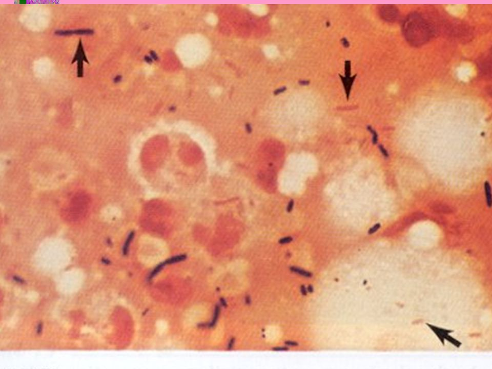 Non-spore forming Anaerobic Gram positive bacilli Actinomyces Actinomycosis Bifidobacterium Eubacterium Lactobacillus Endocarditis Propionibacterium Acne