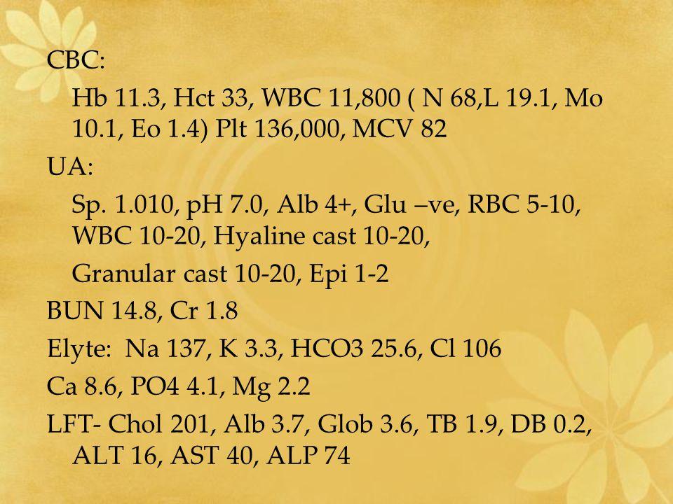 CBC: Hb 11.3, Hct 33, WBC 11,800 ( N 68,L 19.1, Mo 10.1, Eo 1.4) Plt 136,000, MCV 82 UA: Sp. 1.010, pH 7.0, Alb 4+, Glu –ve, RBC 5-10, WBC 10-20, Hyal