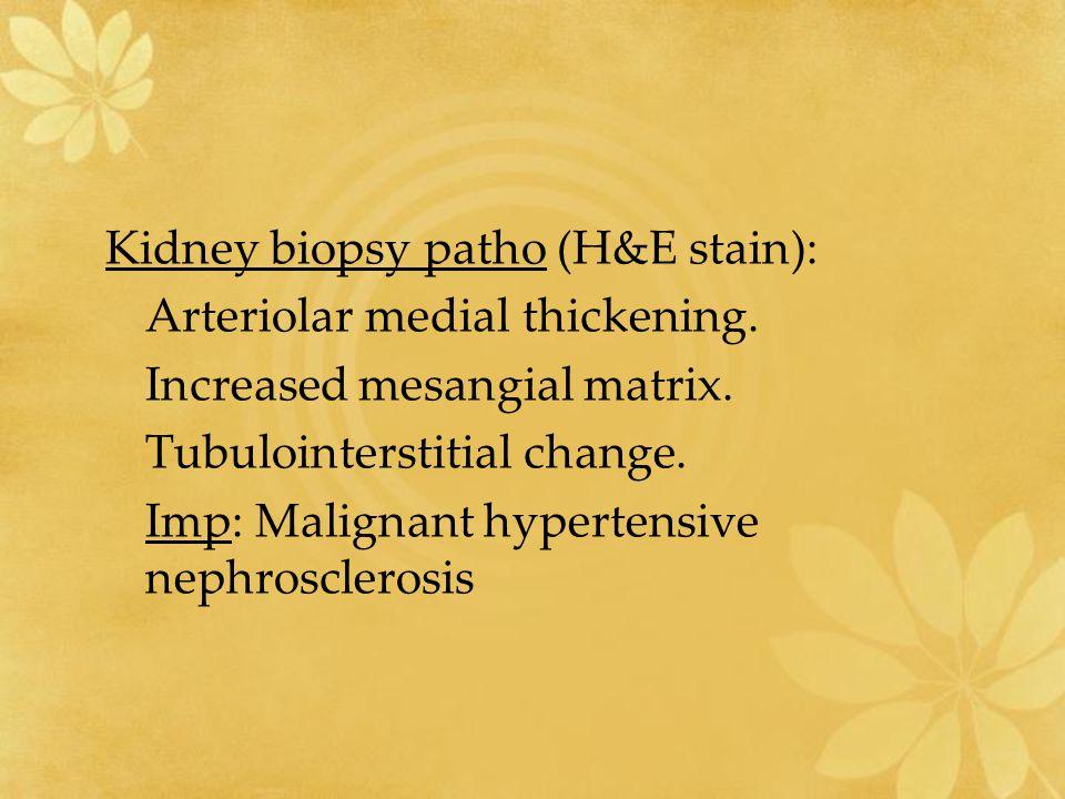 Kidney biopsy patho (H&E stain): Arteriolar medial thickening. Increased mesangial matrix. Tubulointerstitial change. Imp: Malignant hypertensive neph