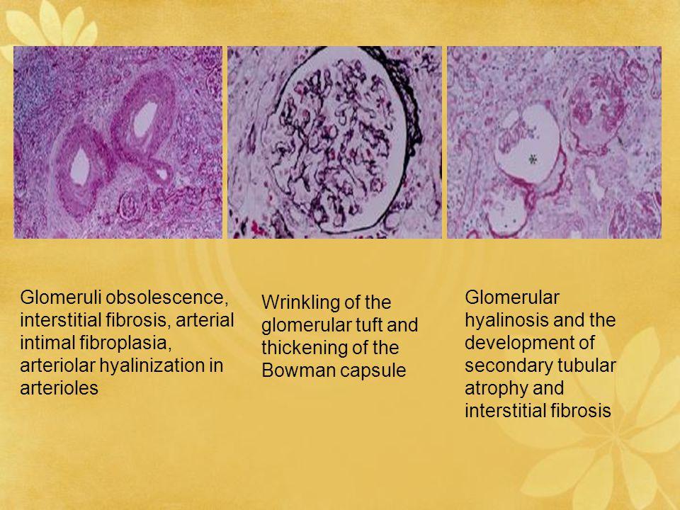 Glomeruli obsolescence, interstitial fibrosis, arterial intimal fibroplasia, arteriolar hyalinization in arterioles Wrinkling of the glomerular tuft a