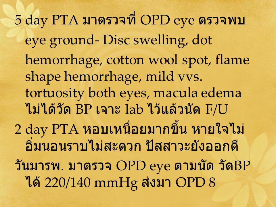 5 day PTA มาตรวจที่ OPD eye ตรวจพบ eye ground- Disc swelling, dot hemorrhage, cotton wool spot, flame shape hemorrhage, mild vvs. tortuosity both eyes