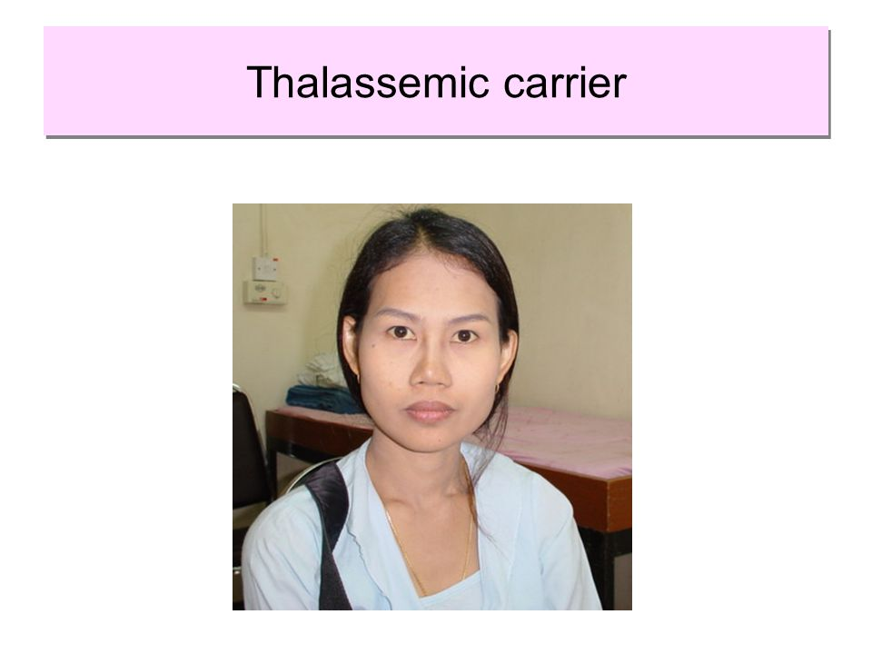 Thalassemic carrier