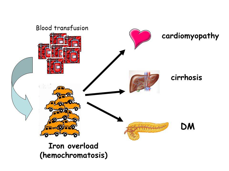 Iron overload (hemochromatosis) Blood transfusion cardiomyopathy cirrhosis DM