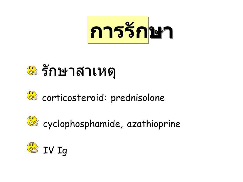 การรักษา รักษาสาเหตุ corticosteroid: prednisolone cyclophosphamide, azathioprine IV Ig