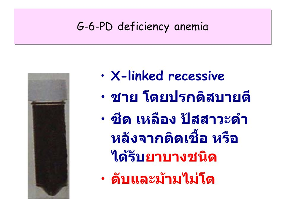 G-6-PD deficiency anemia X-linked recessive ชาย โดยปรกติสบายดี ซีด เหลือง ปัสสาวะดำ หลังจากติดเชื้อ หรือ ได้รับยาบางชนิด ตับและม้ามไม่โต