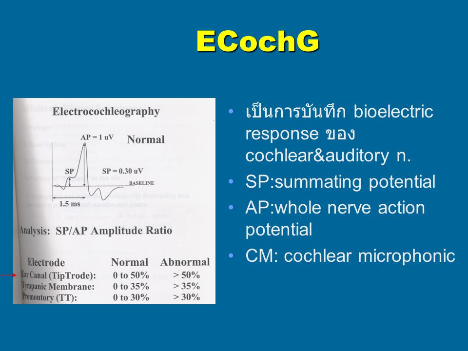 ECochG เป็นการบันทึก bioelectric response ของ cochlear&auditory n. SP:summating potential AP:whole nerve action potential CM: cochlear microphonic