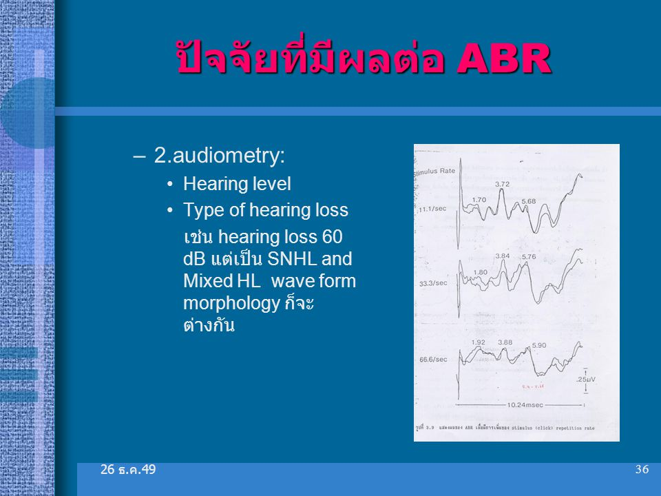 26 ธ. ค.49 36 ปัจจัยที่มีผลต่อ ABR –2.audiometry: Hearing level Type of hearing loss เช่น hearing loss 60 dB แต่เป็น SNHL and Mixed HL wave form morph