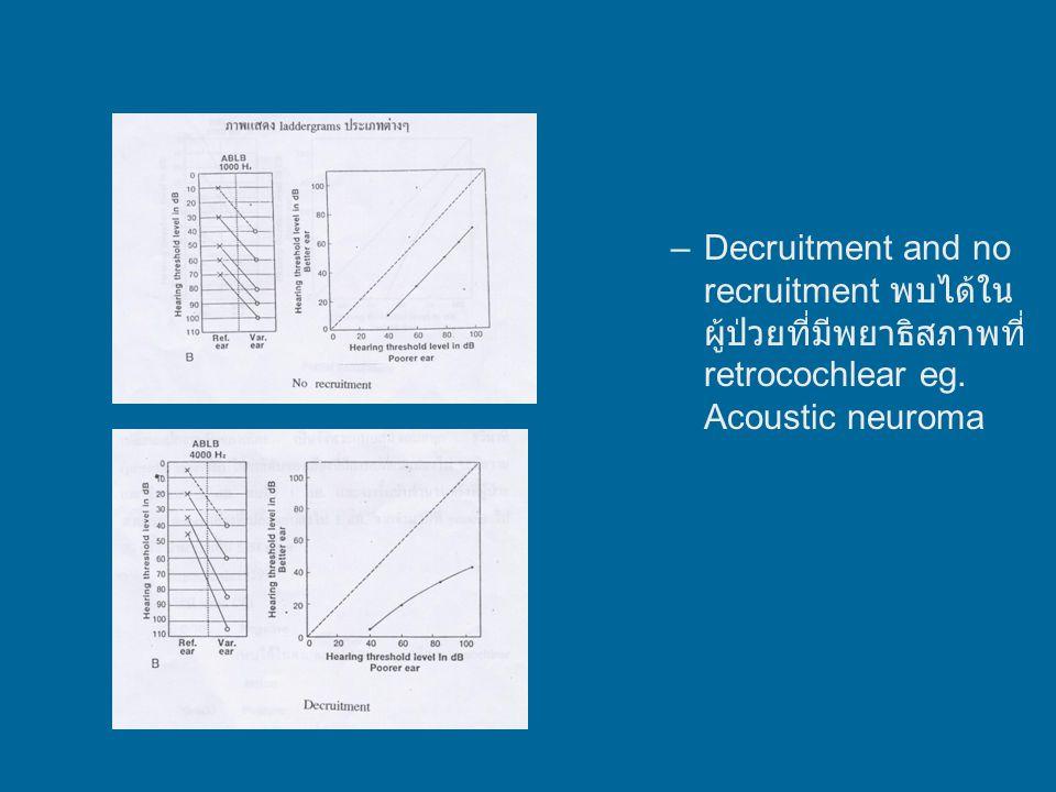 Complete recruitment &partial recruitment พบใน cochlear lesion Recruitment อาจเกิดใน acoustic neuroma ได้ เนื่องจากมีการ interfere ต่อเส้นเลือดที่มาเลี้ยง cochlear