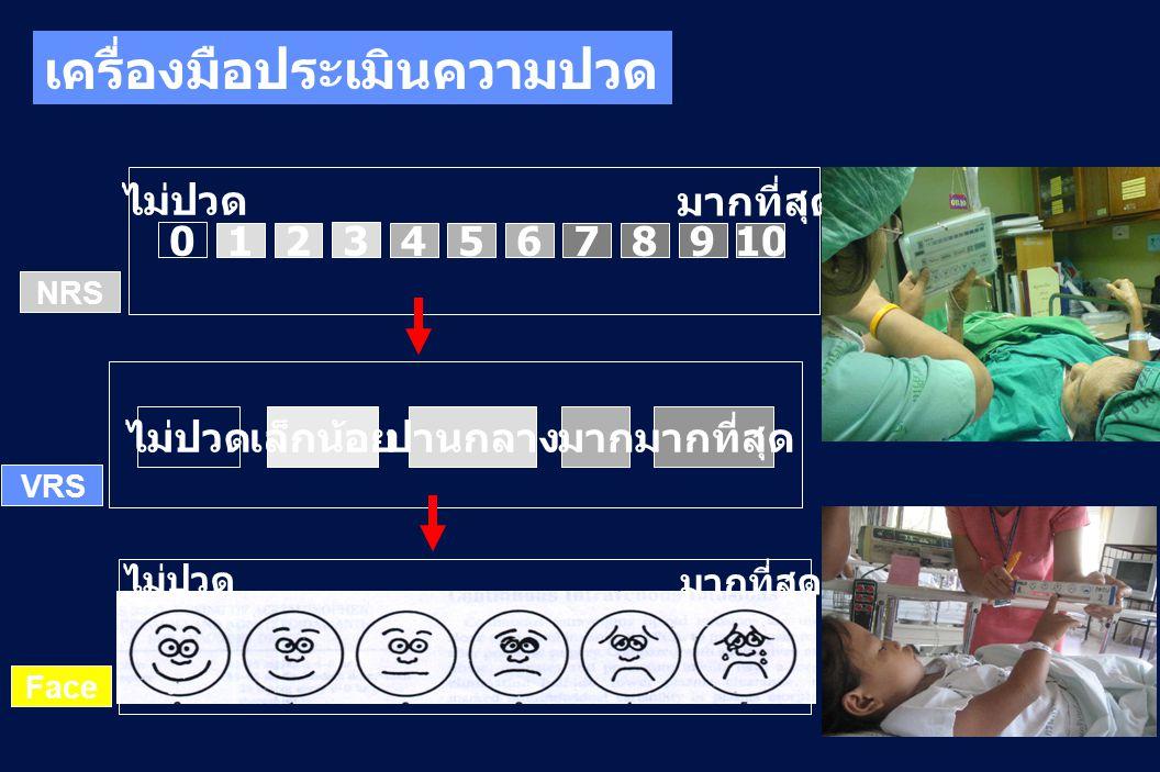 ไม่ปวด มากที่สุด NRS 128 3 4567910 0 ไม่ปวดเล็กน้อยปานกลางมากมากที่สุด VRS มากที่สุด ไม่ปวด Face เครื่องมือประเมินความปวด