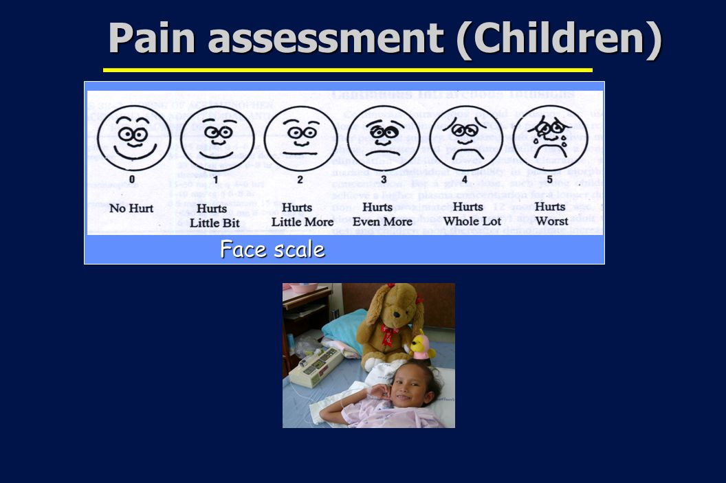 20 Revision 10, 10-26-01 Face scale Pain assessment (Children)
