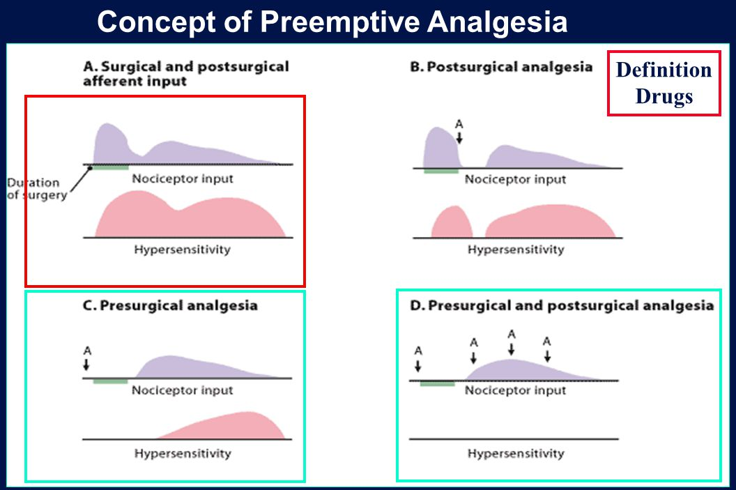 34 Revision 10, 10-26-01 Concept of Preemptive Analgesia Definition Drugs