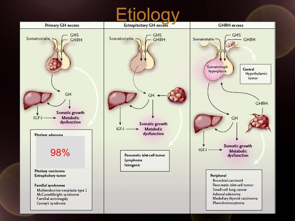Etiology 98%