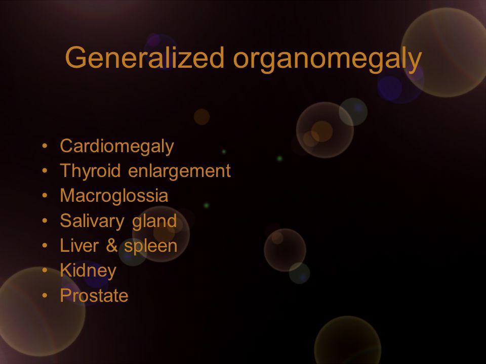 Generalized organomegaly Cardiomegaly Thyroid enlargement Macroglossia Salivary gland Liver & spleen Kidney Prostate
