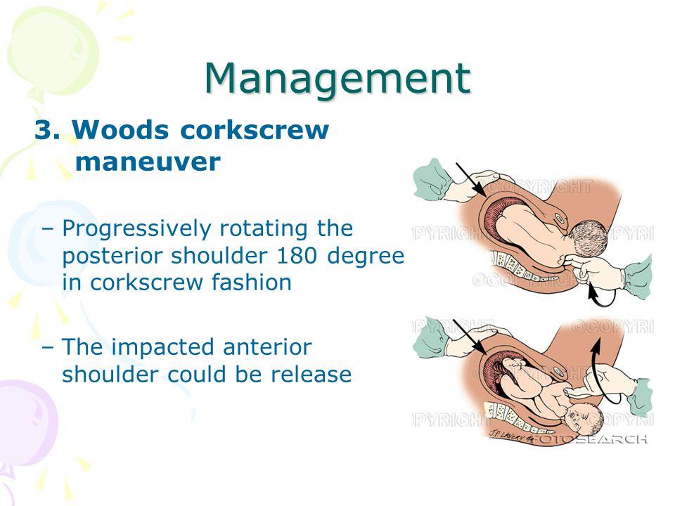 Management 3. Woods corkscrew maneuver –Progressively rotating the posterior shoulder 180 degree in corkscrew fashion –The impacted anterior shoulder