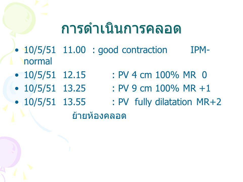 การดำเนินการคลอด 10/5/51 11.00 : good contraction IPM- normal 10/5/51 12.15 : PV 4 cm 100% MR 0 10/5/51 13.25 : PV 9 cm 100% MR +1 10/5/51 13.55 : PV