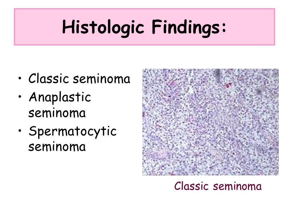 Histologic Findings: Classic seminoma Anaplastic seminoma Spermatocytic seminoma Classic seminoma