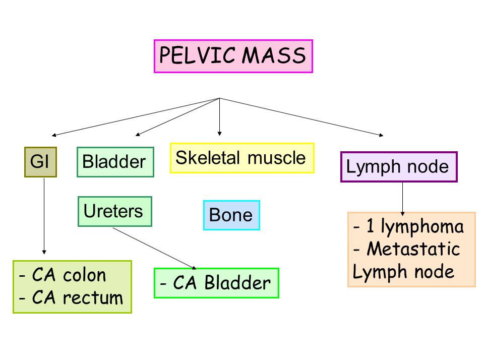 PELVIC MASS Bladder Ureters Skeletal muscle Bone Lymph node GI - 1 lymphoma - Metastatic Lymph node - CA colon - CA rectum - CA Bladder