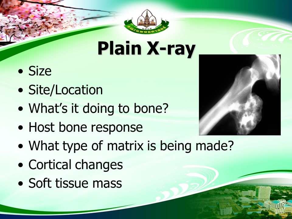 Plain X-ray Size Site/Location What's it doing to bone? Host bone response What type of matrix is being made? Cortical changes Soft tissue mass
