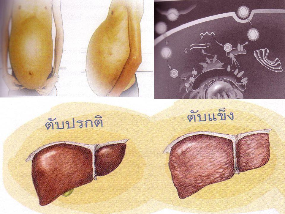 Discussion Liver transplantation สาเหตุ อาการ การรักษาโดยการผ่าตัด ภาวะแทรกซ้อน กายภาพบำบัด