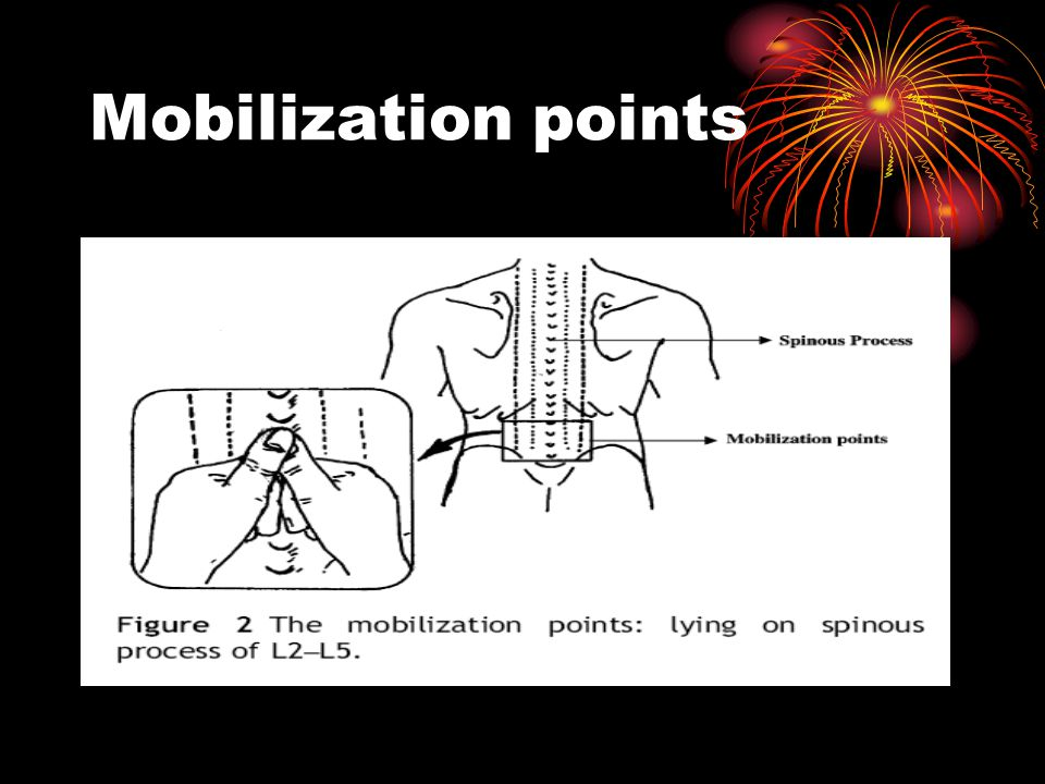 Mobilization points