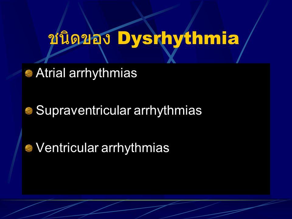 ชนิดของ Dysrhythmia Atrial arrhythmias Supraventricular arrhythmias Ventricular arrhythmias