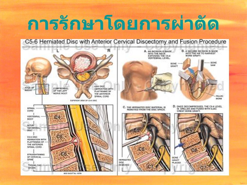 การรักษาโดยการผ่าตัด
