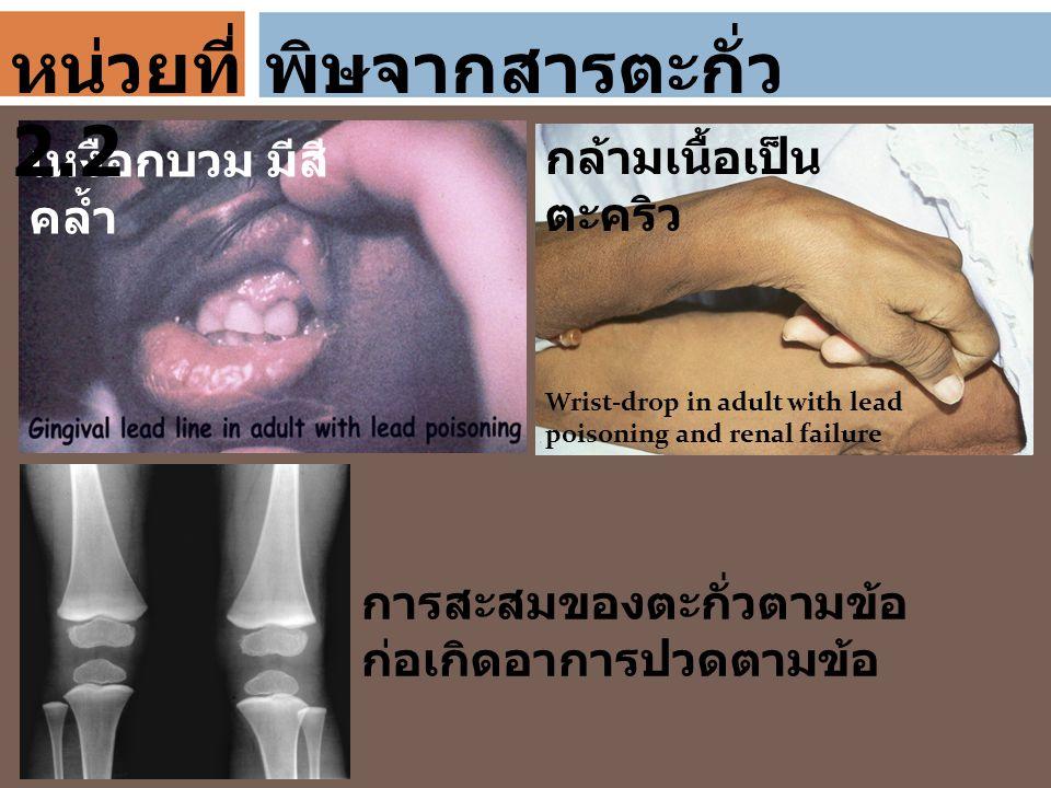 พิษจากสารตะกั่ว เหงือกบวม มีสี คล้ำ Wrist-drop in adult with lead poisoning and renal failure กล้ามเนื้อเป็น ตะคริว การสะสมของตะกั่วตามข้อ ก่อเกิดอากา
