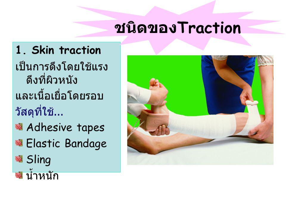 1.Skin traction เป็นการดึงโดยใช้แรง ดึงที่ผิวหนัง และเนื้อเยื่อโดยรอบ วัสดุที่ใช้...