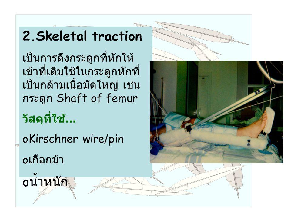 2.Skeletal traction เป็นการดึงกระดูกที่หักให้ เข้าที่เดิมใช้ในกระดูกหักที่ เป็นกล้ามเนื้อมัดใหญ่ เช่น กระดูก Shaft of femur วัสดุที่ใช้...